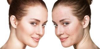 Skóra bez niedoskonałości, czyli technologia pikosekundowa w służbie piękna